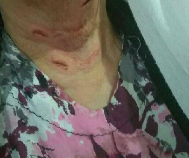 حمله شغال به مادر و پسر در تالش